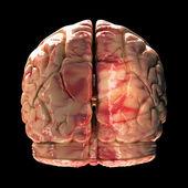 Anatomy Brain - Back View on Black Background — Stock Photo
