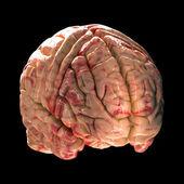 解剖脑-黑色背景上的等轴视图 — 图库照片