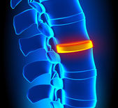 Disc Degeneration - Spine problem — Stock Photo
