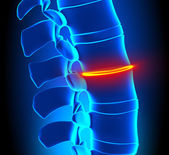 Thinning Disc Degeneration - Spine problem — Stock Photo
