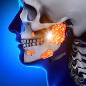 Mumps Parotid Gland - Sickness — Stock Photo