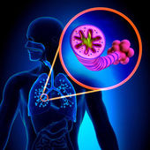 COPD - Chronic obstructive pulmonary disease — Stock Photo