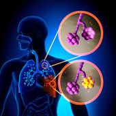 Pneumonia - Normal alveoli vs Pneumonia — Stock Photo
