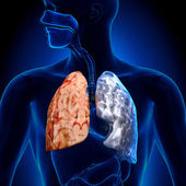 Smoker vs Non-smoker - Lungs Anatomy — Stock Photo
