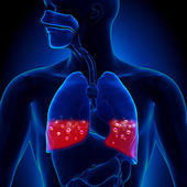 Pulmonary Edema - Blood in Lungs — Stock Photo