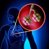 Lungs Alveoli - Human Respiratory System Anatomy — Stock Photo