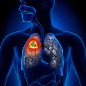 Lung Cancer - Tumor detail — Stock Photo