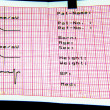 Stock Photo: ECG Diagnostic Sheet