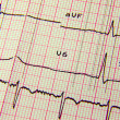 ECG EKG Reading Sheet — Stock Photo