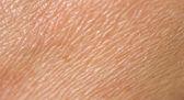 Human skin — Stock Photo