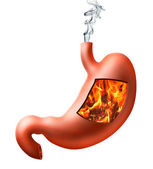 StomachHeartburn — Stock Photo
