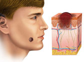 Melanoma na face — Fotografia Stock