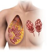 Breast tumor — Stock Photo