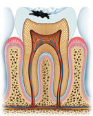 Principle of a cavity — Stock Photo