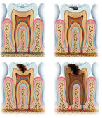 Stages of tooth caries — Stock Photo