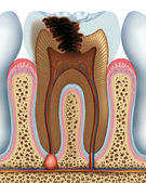 Tooth caries — Stock Photo