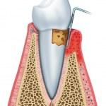 ������, ������: Periodontitis half