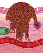 Cancerigenic cells — Stock Photo