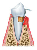 Periodontitis half — Stock Photo