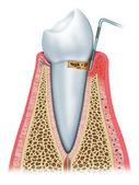 Initial periodontitis — Stock Photo