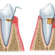 Development of periodontitis — Stock Photo