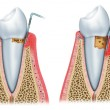 Постер, плакат: Development of periodontitis