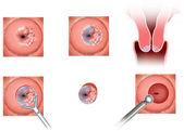 Cervical tumor — Stock Photo