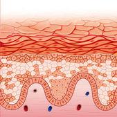 Darier skin disease — Stock Photo