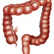The large intestine - Stock Photo