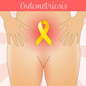 Endometriosis — Stock Photo
