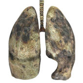 Diseased lungs — Stock Photo