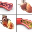 Normal and Diseased Arteries and Hearts — Stock Photo #37194647