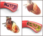 Normal and Diseased Arteries and Hearts — Stock Photo