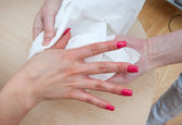 Woman hand after treatment — Stock Photo