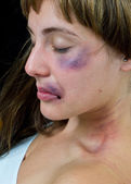 Woman with bruises — Stock Photo