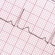 Digitally recorded ECG graph — Stock Photo