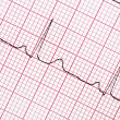 Stock Photo: Digitally recorded ECG graph