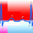 Electrocardiogram — Stock Photo