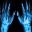 X-ray of an hand (blue) - Stock Photo