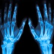 X-ray of an hand (blue) - Foto Stock