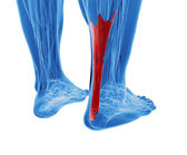 Achilles tendon with lower leg muscles — Stock Photo
