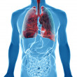 Stock Photo:  lung cancer in x-ray view