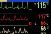 Medical Monitor. Close-up photos. — Foto de Stock