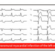 ������, ������: ECG Acute transmural myocardial infarction of the left ventricle