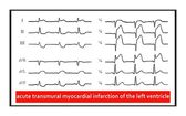 ECG. Acute transmural myocardial infarction of the left ventricle — Foto Stock
