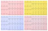 Medical background. ECG. 4 types of toning. — Stock Photo