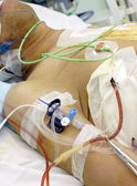 Patient in the ICU. Seriously ill in bed. — Stock Photo