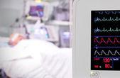 Monitor en la sala. unidad de cuidados intensivos. — Foto de Stock
