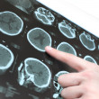 CT scan of the patient's brain and the hand of a doctor. — Stock Photo