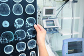 Interpretation of tomography of the brain in the ICU — Stock Photo